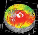 HRT Retina Macular Hole 3D Map