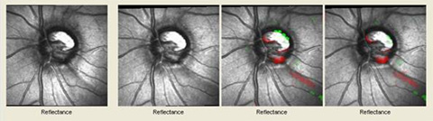 Glaucoma Reflectance Images - Progression