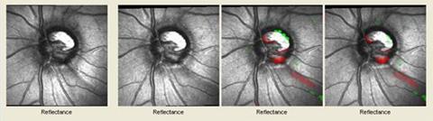 Glaucoma Reflectance Images - Progression